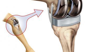 Ilustración rótula rodilla