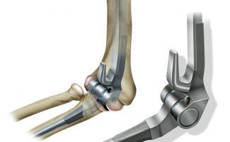 Ilustración prótesis de codo